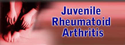 Hip replacement an excellent option for young juvenile arthritis patients